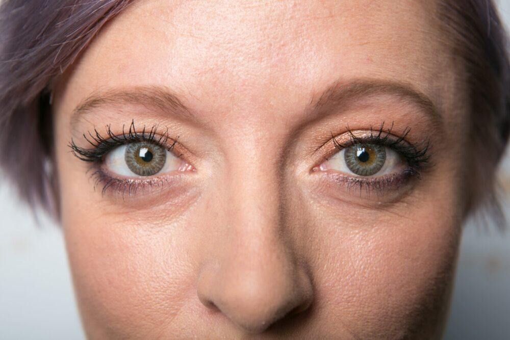 Management Of The Mature Cataract