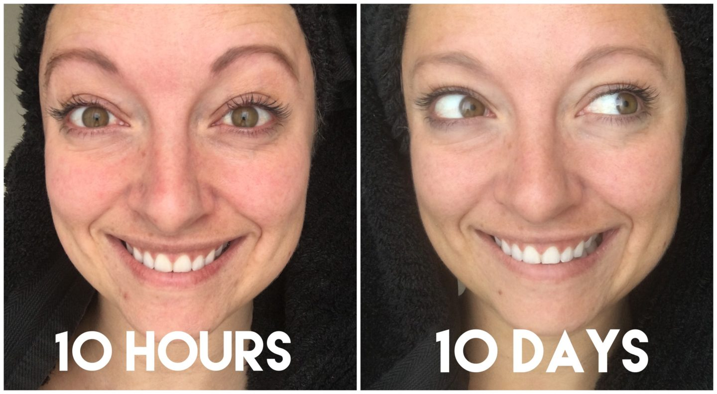 Been Using Miracle 10 for 3 Months – Here's My Results!